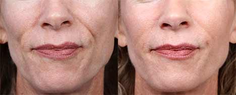 Фото до и после Radiesse (Радиес)