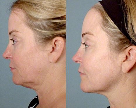 Фотография пациента до и после процедуры Альтера систем (Ulthera system)