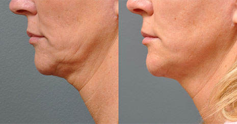 Фотография пациента до и после процедуры Альтера систем (Ulthera system) подбородок