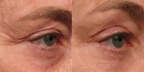 Фотографии пациентов до и после процедуры Альтера систем (Ulthera system) глаза