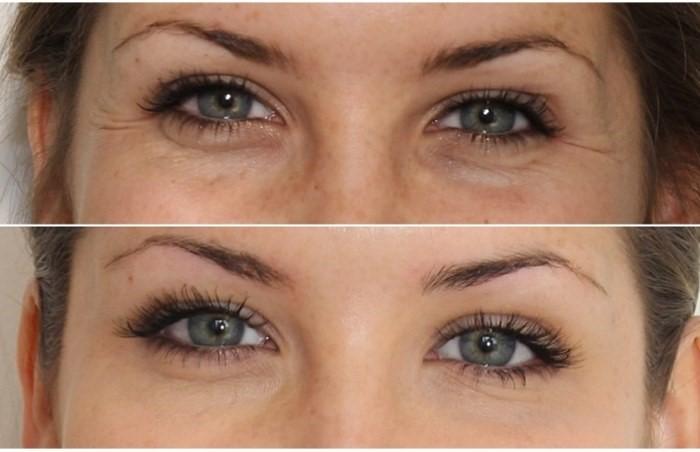 Фото пациента до и после Ксеомин / Xeomin